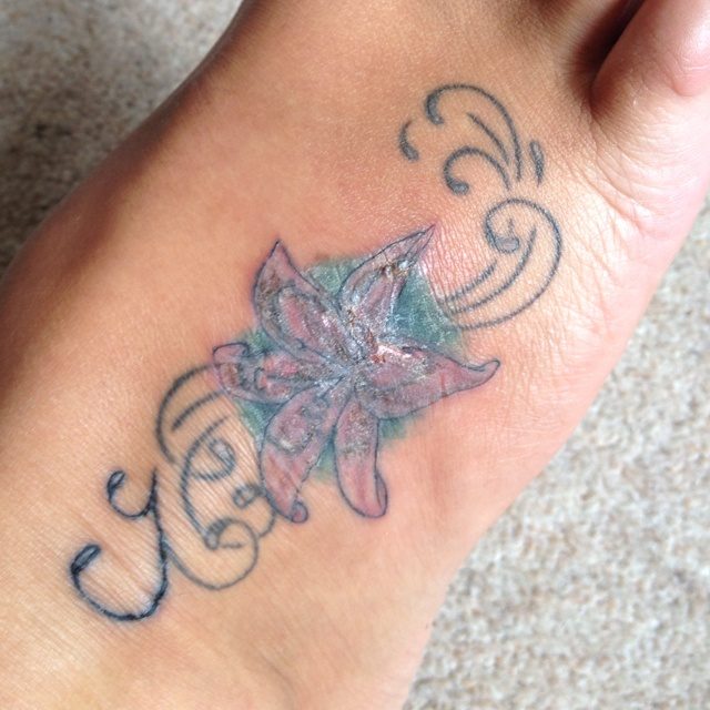 Best 20 infected tattoo ideas on pinterest tattoos for Badly infected tattoo
