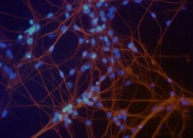 USP cria coleção de células tronco brasileiras