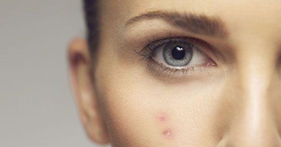 How to treat your acne | elevatemagazine.com