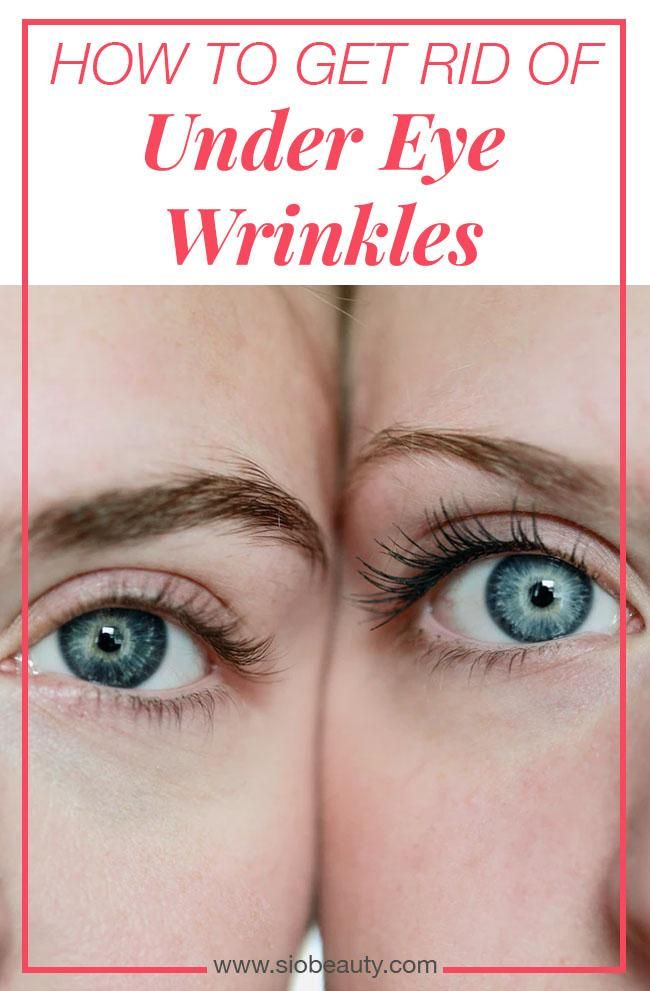 The Best Home Remedies For Under Eye Wrinkles Under Eye Wrinkles Eye Wrinkle Undereye
