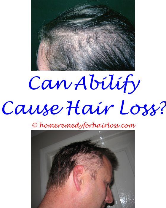 14 best Pcos Hair Loss images on Pinterest | Beer bottle, Co ...