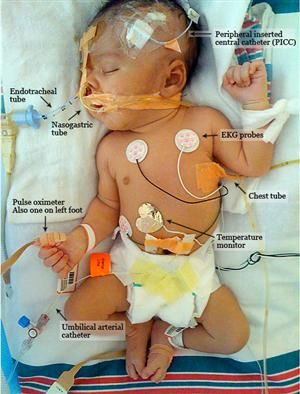 Premature Babies: Their Nursing Care and Management