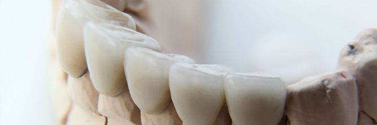 Crown: a crown is a surface cap that encases the entire tooth, thus restoring it to its original shape and size. Call (604) 251-4000 for more info.