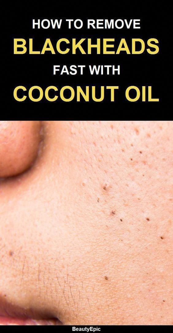 How to use coconut oil to remove blackheads #diycoconutoil