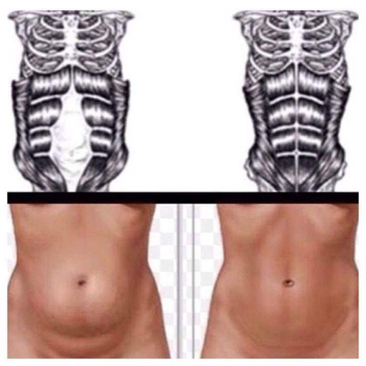Diastasis recti healing workout
