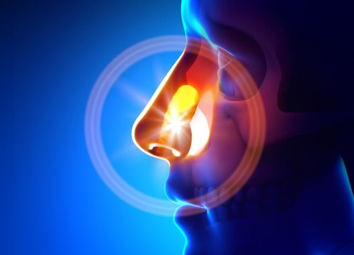 Here are a few ways you can naturally treat sinusitis.