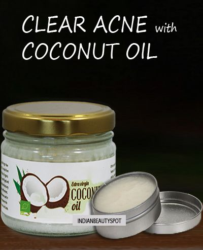 DIY homemade coconut oil zit zapper - clear acne with coconut oil