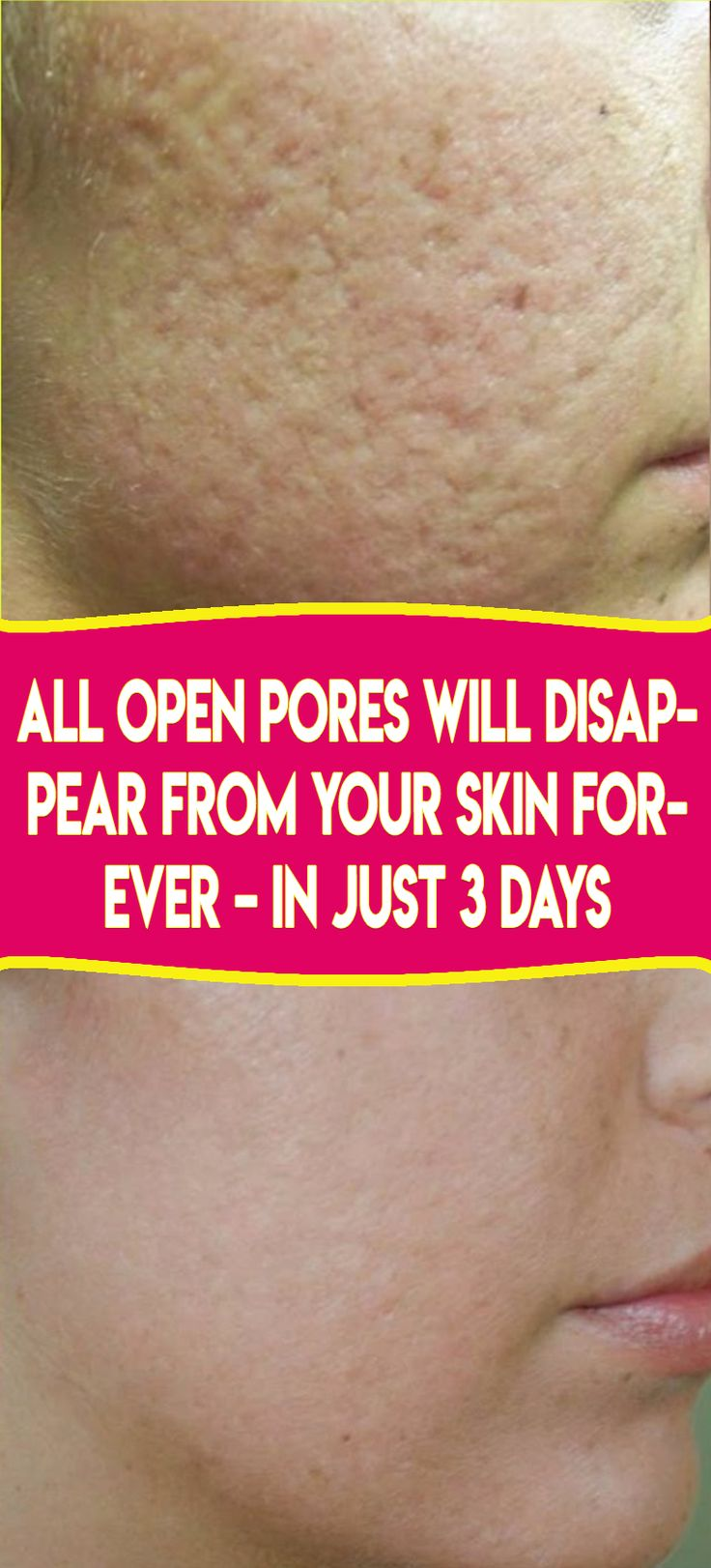 All Open Pores Will Disapear from Your Skin Fover In 3 days