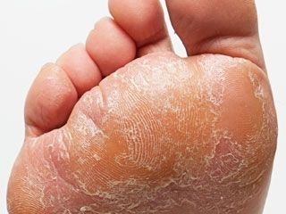 This article provides a few options for foot fungus home remedies. Get rid of the itch and discomfort by natural means today! Click the pin for more information....
