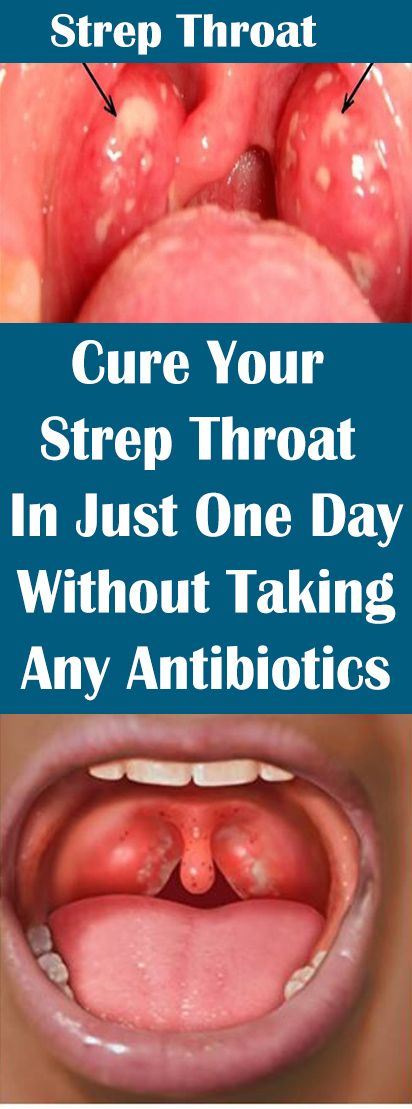 Cure Your Strep Throat In Just One Day Without Taking Any Antibiotics! – Let's Tallk