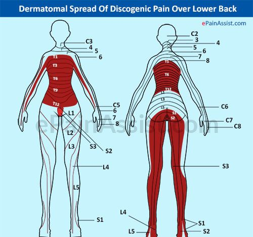 how to put sciatica back in place