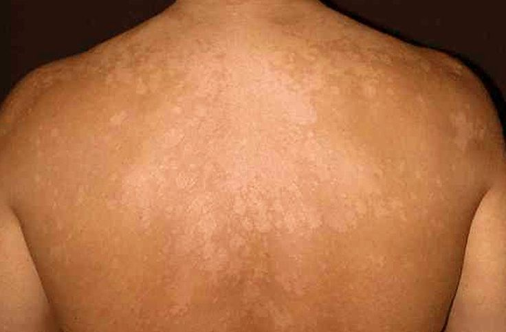 Tinea versicolor is a type of skin infection that is primarily characterized by spots or patches that are either lighter or darker than the skin around them. No, you don't get the condition from someone because yeast responsible for the infection is naturally found on your skin. They're constantly there, but they may multiply uncontrollably …