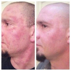 Check out these results!  Men love Nerium too!    http://betsyrsmith.me/2013/06/09/amazing-before-and-after-pix-men-love-nerium/ #nerium #skincare