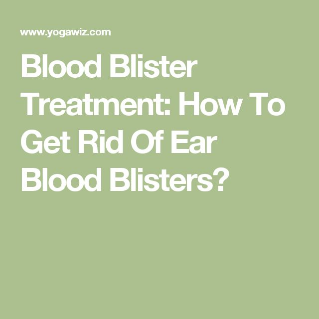 Blood Blister Treatment: How To Get Rid Of Ear Blood Blisters?