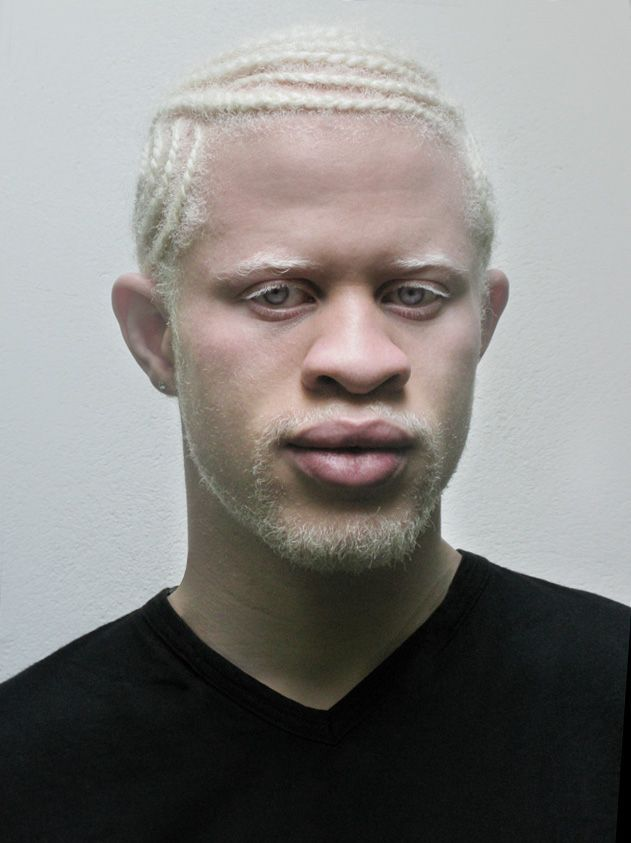 Albino Man...admit it, his gaze holds your attention, and makes you admit he's eye candy - agreed