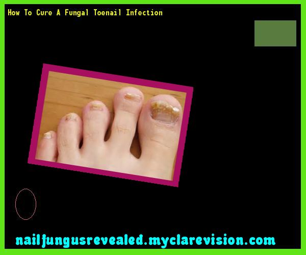 How to cure a fungal toenail infection - Nail Fungus Remedy. You have nothing to lose! Visit Site Now