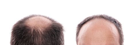 Top Micro Needling Tips with Derma Roller for Hair Loss