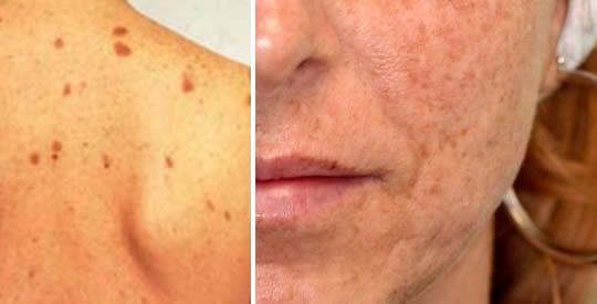 Macchie della pelle: eliminarle in modo naturale | Rimedio Naturale