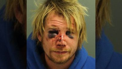 The only thing Matthew Lawrence Bergstedt, 27, got from his ex's house were lots of cuts, scrapes and two black eyes.