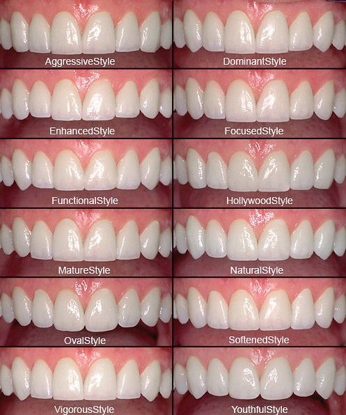 Want to change the appearance of <b>one</b> or more <b>teeth</b>? Veneers are ...