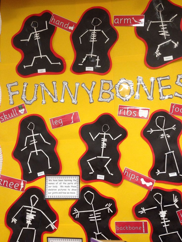 Funnybones display