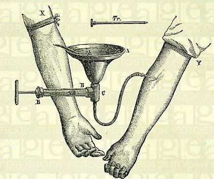 person to person blood transfusion 1888 - Google Search
