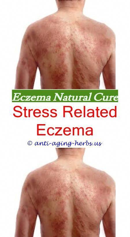 eczema visage stress