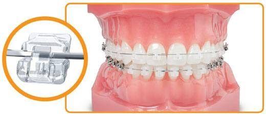Niềng răng hiện nay đã không còn xa lạ với những khách hàng có nhu cầu điều chỉnh lại hàm răng đang khiếm khuyết của mình. Trong đó niềng răng với mắc cài tự đóng Speed là một trong những phương pháp được đánh giá khá tốt cho đến thời điểm hiện tại. Vậy tại sao nó lại được ưa chuống như vậy? Ưu điểm của niềng răng mắc cài tự đóng này là gì?