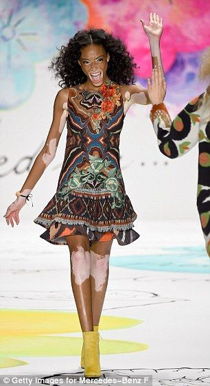 Beauty takes many forms...Winnie Harlow, who suffers from the pigmentation disorder vitiligo, took to the catwalk at the Disgual fashion show