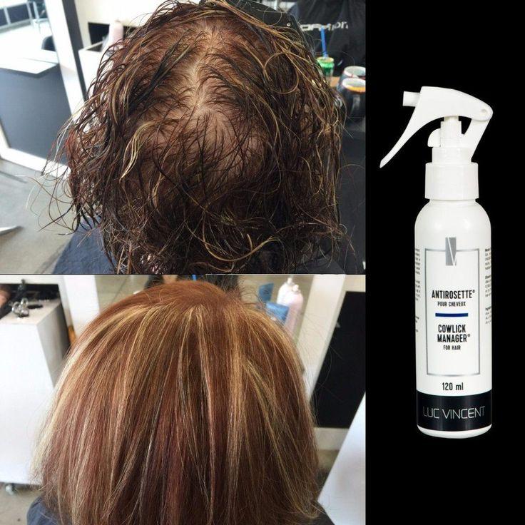 L'ANTIROSETTE pour cheveux Luc Vincent | l'Antirosette est facile à utiliser sur les zones problématiques partout sur la chevelure.