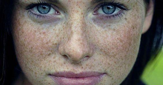 Manchas marrones en la cara: causas, consejos y soluciones efectivas