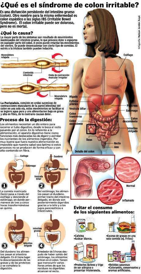 ¿Qué es el Síndrome de Intestino Irritable o Colon Irritable? #Infografía #Infographic
