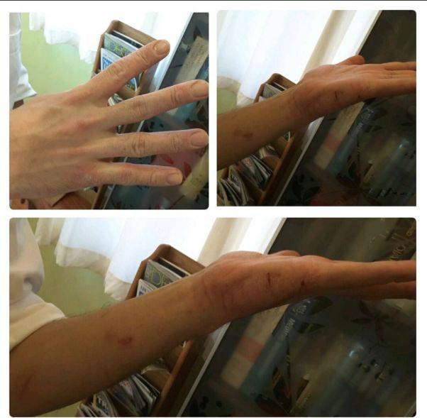 psoriasis arthritis arzt colitis ulcerosa.jpg