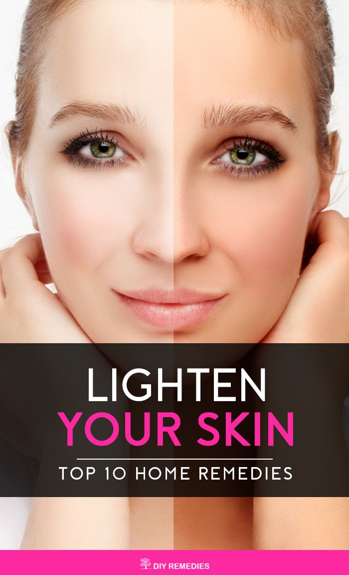 Home Remedies to Lighten your Skin Naturally  Have a look at these natural remedies to brighten and lighten your complexion by controlling the melanin production in the body.   #Skin #LightSkin #HomeRemedies #DIYRemedies #BeautyTips #SkinCare