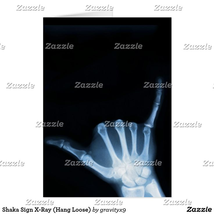 Shaka Sign X-Ray (Hang Loose) Card - Available in three size options!