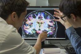 Semaine du cerveau : où en est la science ?