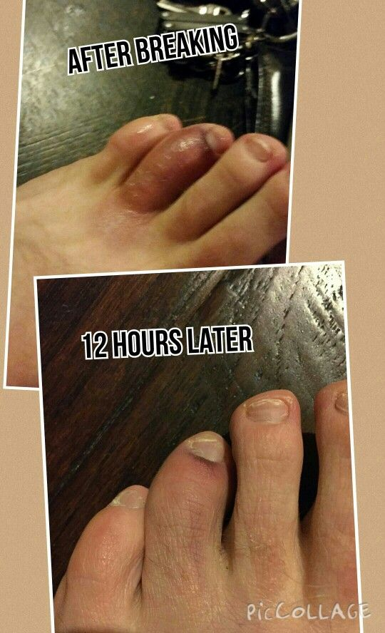 Young Living's Copaiba essential oil drastically improved a broken toe in 12 hours! Contact me at stikkiann@aol.com if you want to know more!