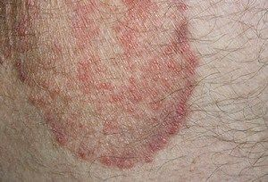 Jock itch - symptom, causes and other complications
