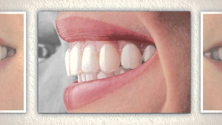 The therapy of Invisalign teeth braces includes a series of aligners that you will need to switch in an average of every two weeks. Obviously, your Invisalign teeth brace therapy is customized and only efficient for your teeth.
