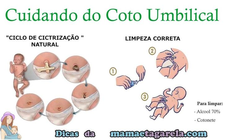 cuidando do coto umbilical como cuidar do umbigo do bebe recem nascido