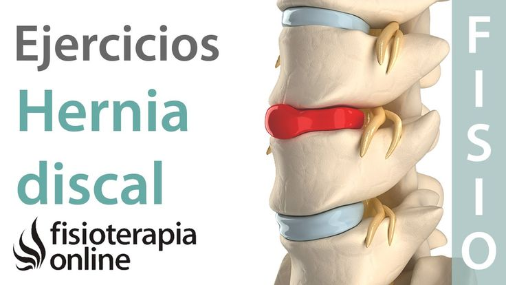Hernia discal lumbar: Diagnóstico, consejos, ejercicios y tratamiento de...