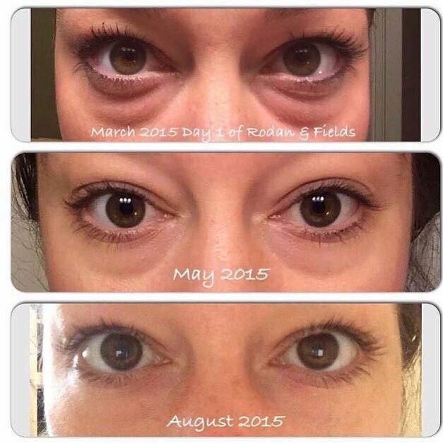 "Our eye cream + eye cloths are a deadly duo for crows feet, puffiness, thin ""creepy"" ski and dark circles, even in the most extreme cases! And we always have a 60 day money back guarantee! https://emilyzalacca.myrandf.com"