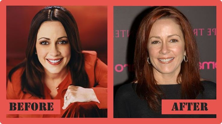 Patricia Heaton Plastic Surgery Before And After Patricia Heaton Plastic Surgery #PatriciaHeatonPlasticSurgery #PatriciaHeaton #celebritypost