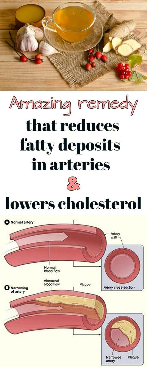 Amazing remedy that reduces fatty deposits in arteries and lowers cholesterol