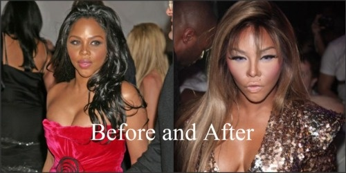 Lil Kim before and after photo