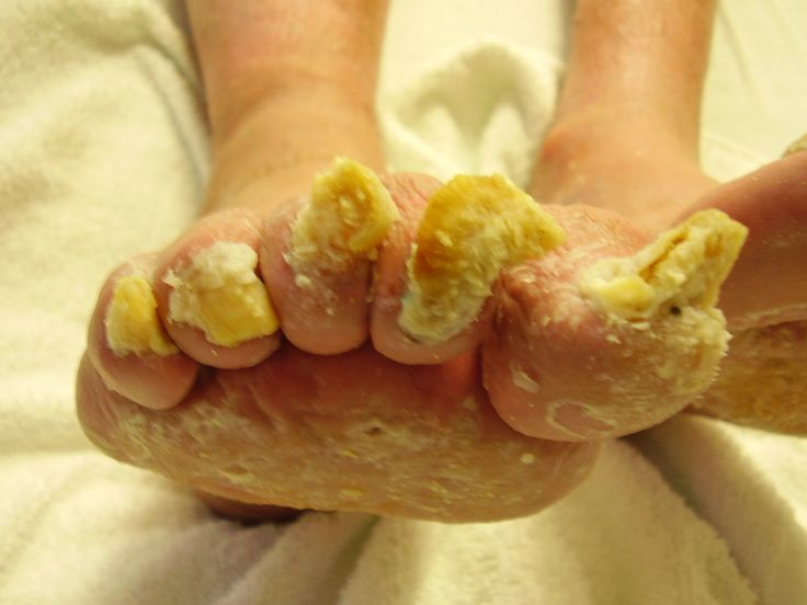 what do foot fungus look like