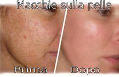Come eliminare le macchie sulla pelle