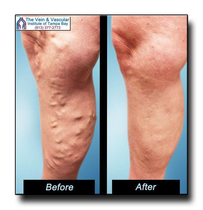 Varicose Veins Before and After Pictures. Call (813) 377-2773  for a Vein Consultation.  https://www.tampavascularsurgeon.com/tampa-varicose-vein-removal-pictures/