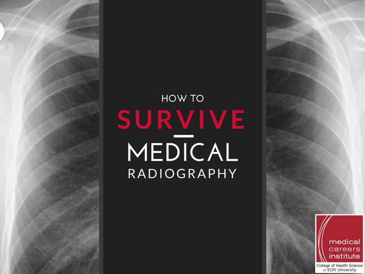 How to Survive Medical Radiography   #MedicalRadiography #Radiography #ECPIUniversity  http://www.ecpi.edu/blog/how-survive-career-medical-radiography