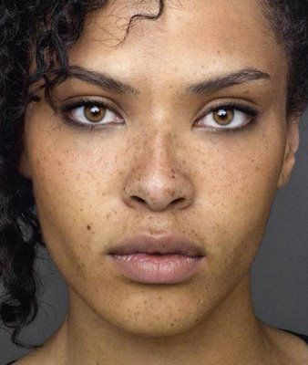 Black People with Freckles Meladerm for freckels @ http://meladermpigmentreducingcomplex.org/is-meladerm-good-for-freckles/